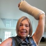 My wrist in heavy cast post-surgery March 30.